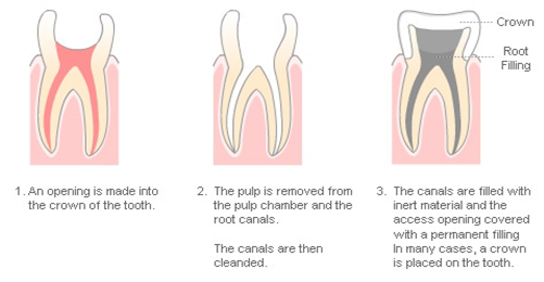 Root canal treatment in singapore
