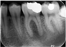 PA (Periapical)