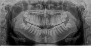 OPG (Orthopantomogram)