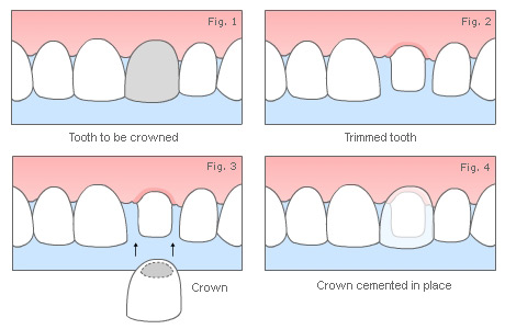 How a crown is done